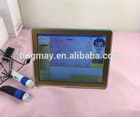 Skin and Hair Analyzer Scalp Analyzer